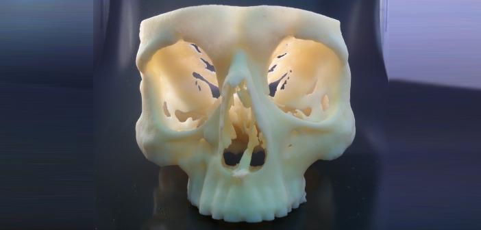 -Skull